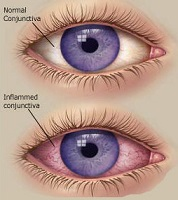 viral conjunctivitis what it is what causes it and how. Black Bedroom Furniture Sets. Home Design Ideas