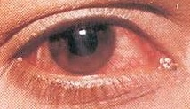 Viral conjunctivitis what it is what causes it and how to treat it for Molluscum contagiosum swimming pool