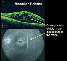 Diabetic macular edema