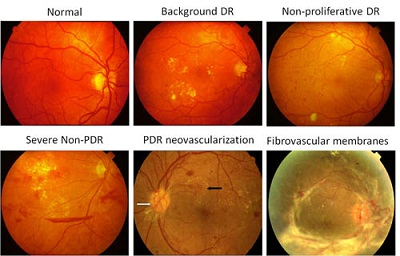 Diabetic Retinopathy Treatment Intravitreal Injections
