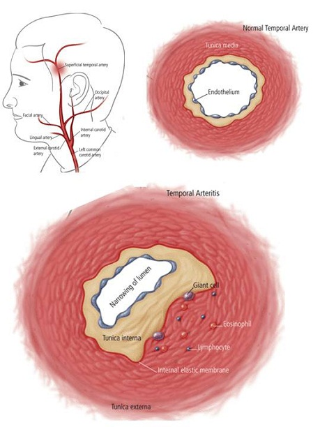 Temporal Arteritis Giant Cell Arteritis What It Is And