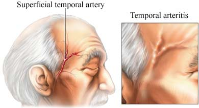 temporal arteritis (giant cell arteritis) - what it is and how to, Skeleton