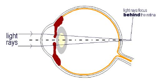 Jelentése myopia és hyperopia szemüveg