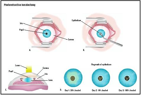 Laser Refractive Surgery Prk Epi Lasik And Lasek
