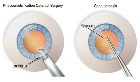 Cataract Surgery - A Step by Step Guide to Phacoemulsification