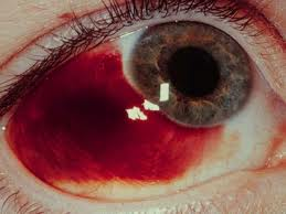 Cataract Surgery Potential Complications That You Should Know About