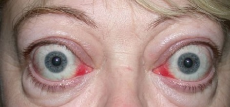 Thyroid Eye Disease What It Is What Causes It And How To Treat It