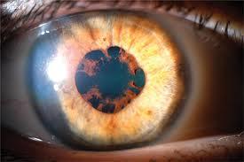 how often to use prednisolone eye drops