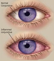 Viral conjunctivitis what it is what causes it and how to treat it viral conjunctivitis ccuart Choice Image