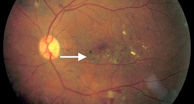Early treatment of diabetic retinopathy study