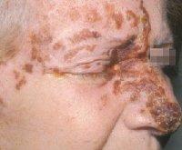 viral meningitis steroid shots
