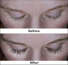 how do eye drops help